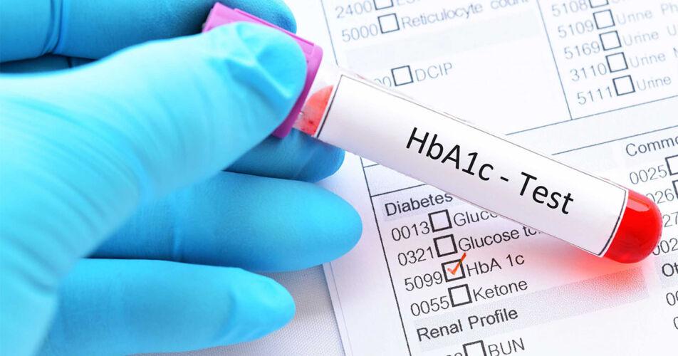 A1c test διαβητικοί ασθενείς - Μικροβιολογικό Καλαμάτα - Ρουμπέα Παρασκευή